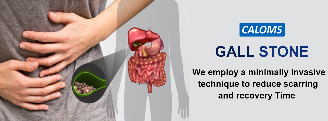 Gallbladder stones treatment in Maharashtra
