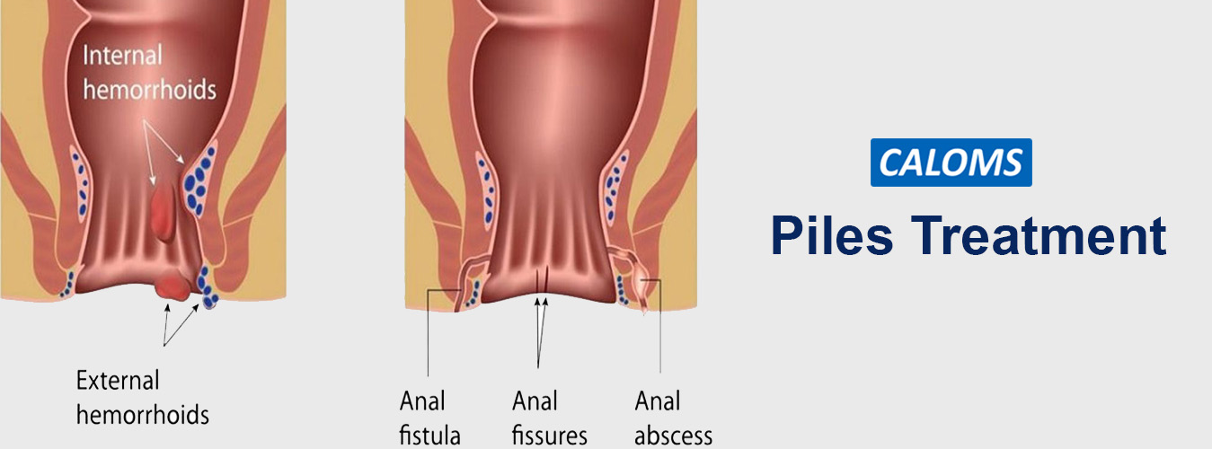 Piles Treatment in Pune