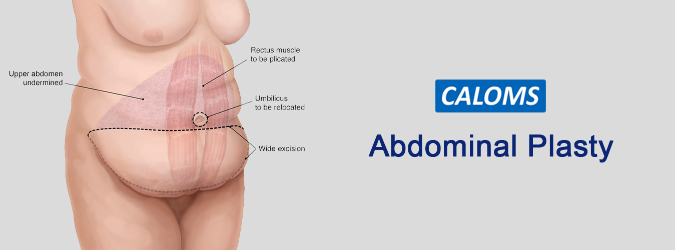 Bariatric Surgery in Pune