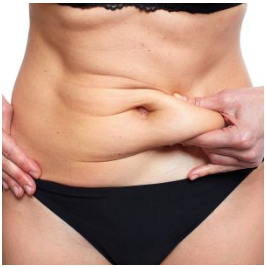 Weight Loss Surgery in Pune